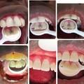 Consultation: Conservative Dentistry